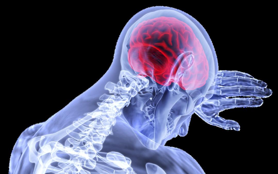 Infarto cerebral de la madre tras el parto: negligencia médica